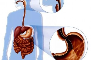 武汉国医堂胃肠为什么胃肠镜查看都要求空腹呢