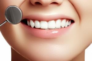 漂白牙齿方法有哪些漂白牙齿的价格是多少